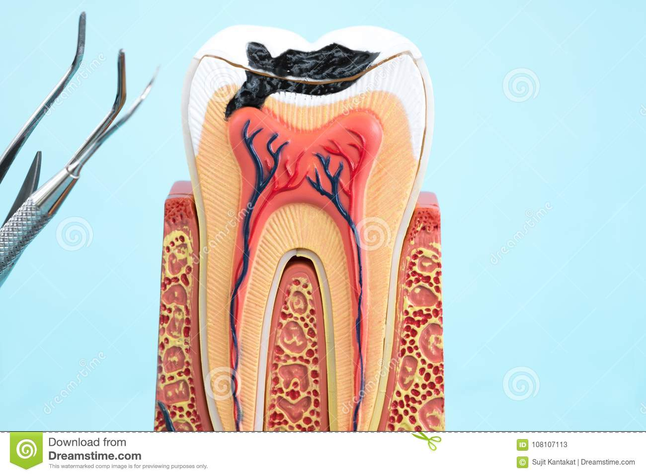 Dental Tools And Tooth Anatomy. Stock Image - Image of structure ...