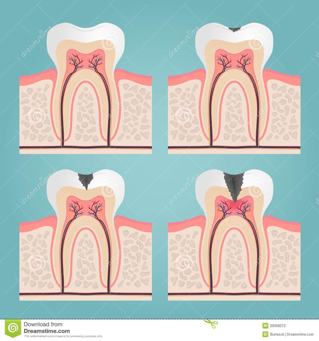 Tooth anatomy stock vector. Illustration of caries, blood - 39358212