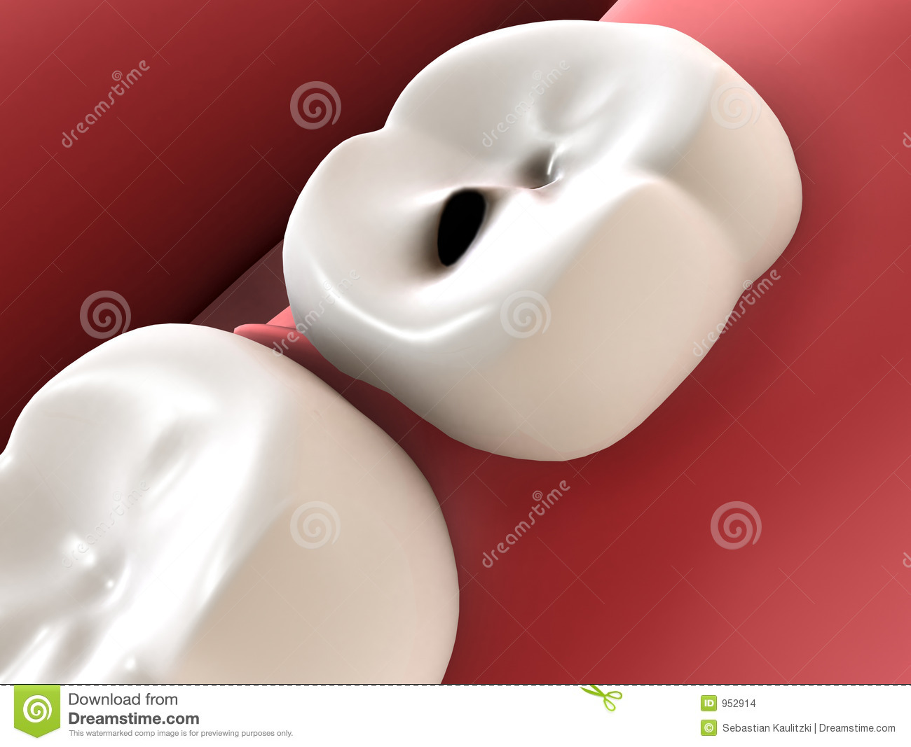 Caries Stock Illustrations – 4,045 Caries Stock Illustrations ...