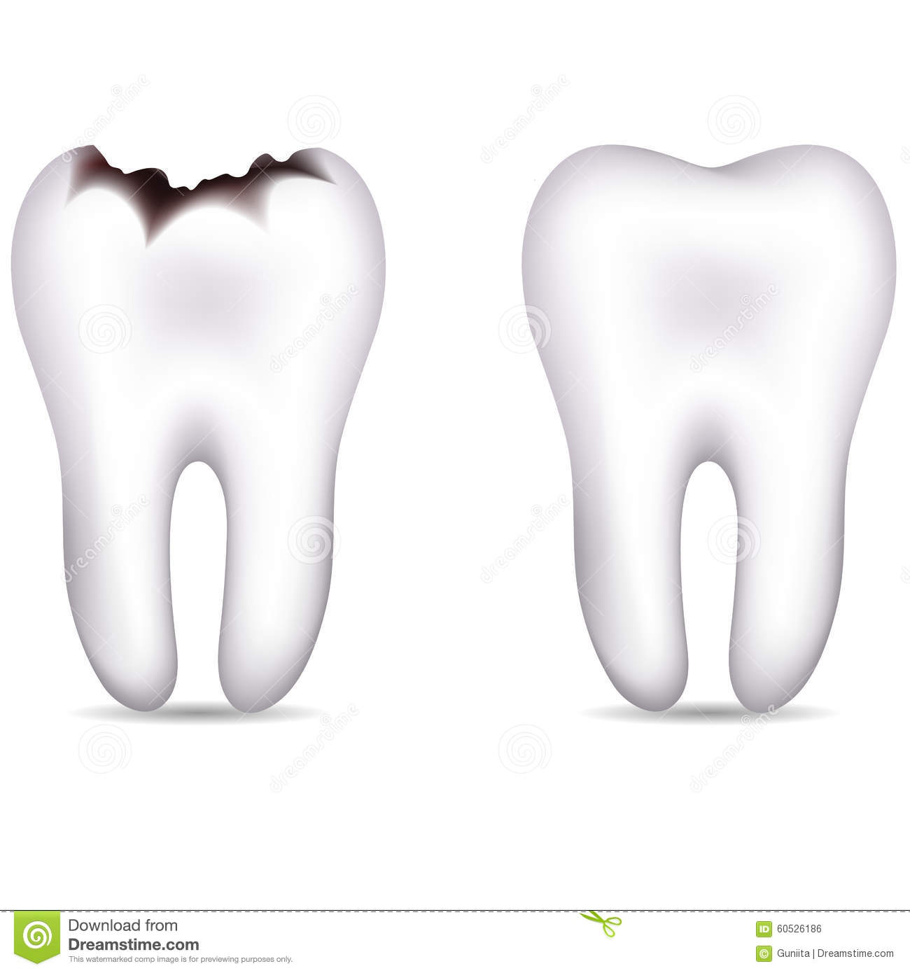 Tooth With Caries And Healthy Tooth Stock Vector - Image ...