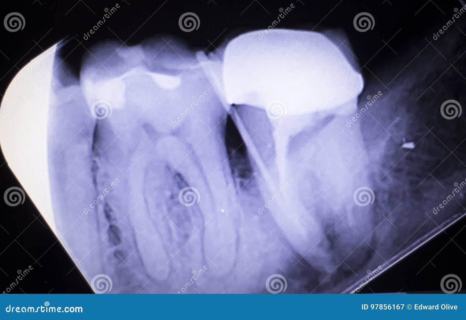molar tooth abscess - HD1300×911