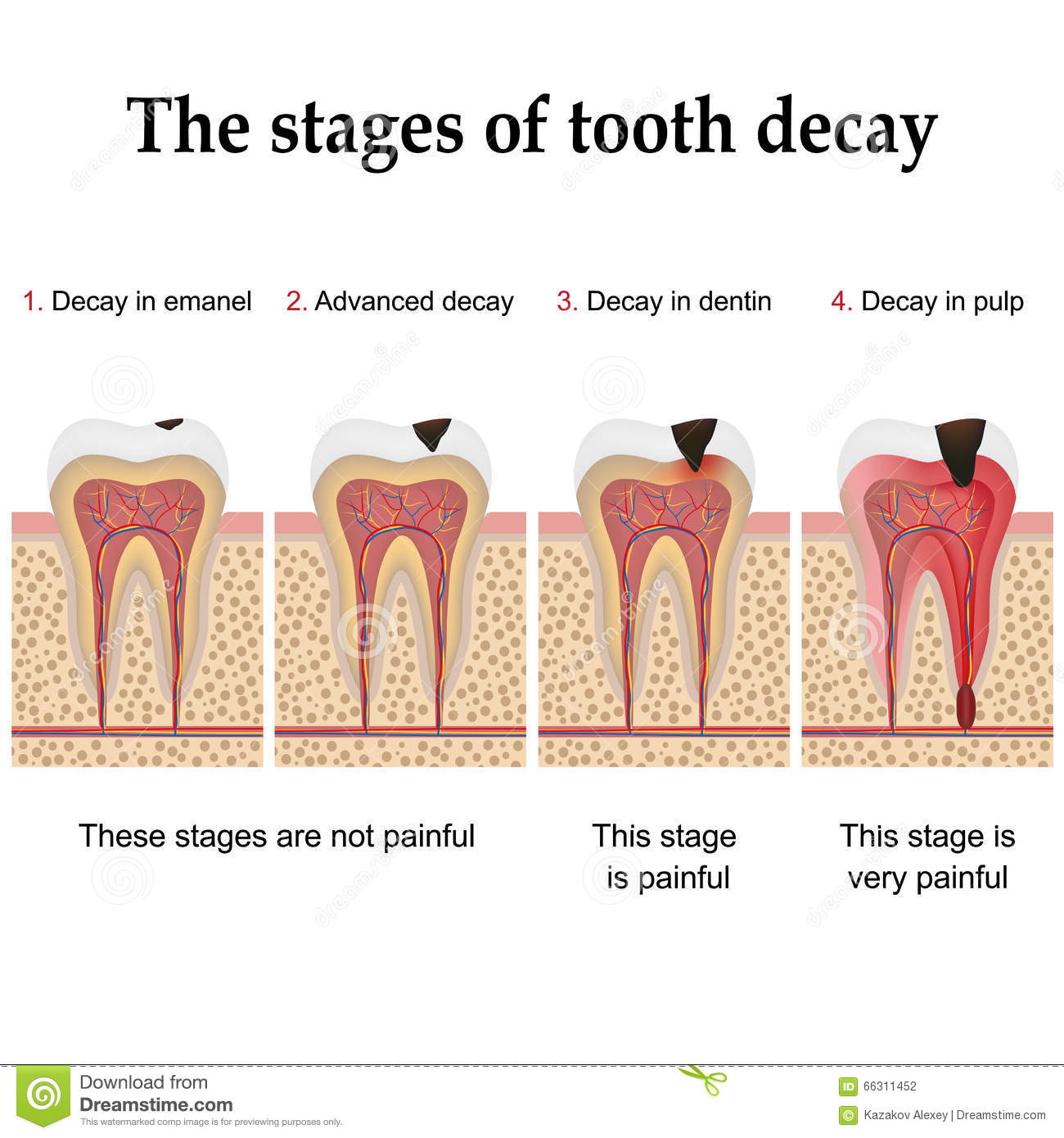 an introduction to the issue of tooth decay How a tooth decays introduction you've this project helps you to understand the process that causes a tooth to decay you will also learn to protect your teeth and prevent tooth decay material and instructions: you collect some.
