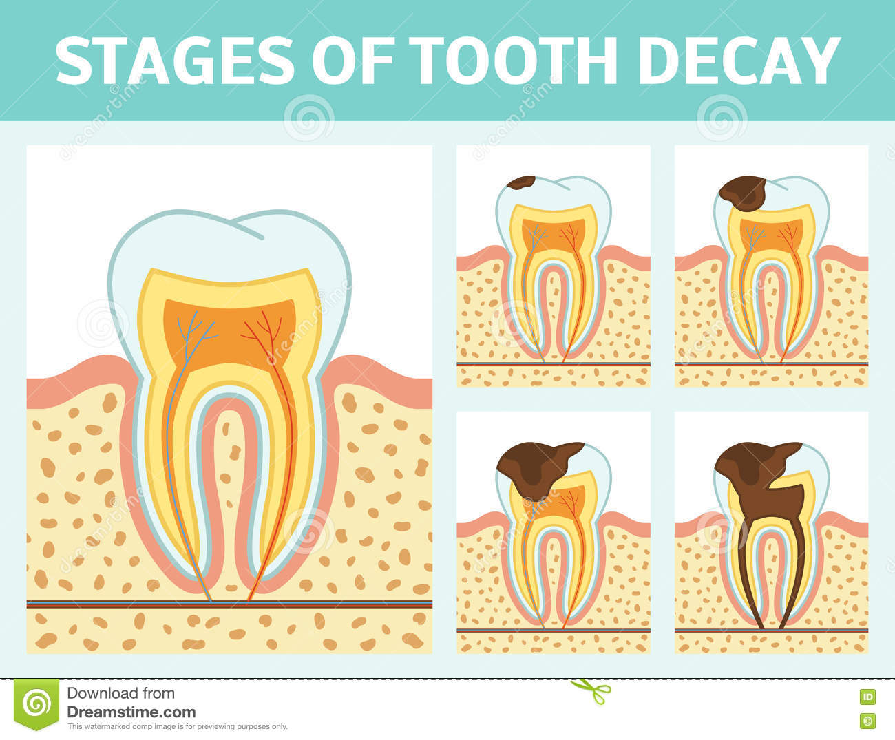 Tooth Decay Stages Stock Illustration - Image: 82408196