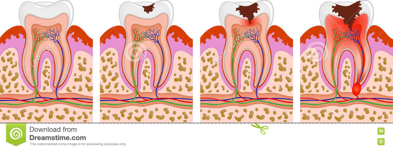 Tooth Decay Vector Human Decaying Stages