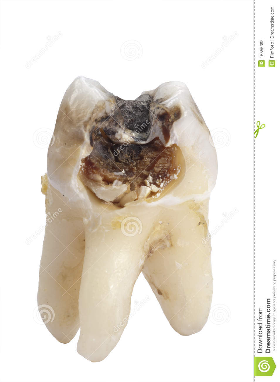 Tooth Dental Caries Royalty Free Stock Photos - Image: 15555398
