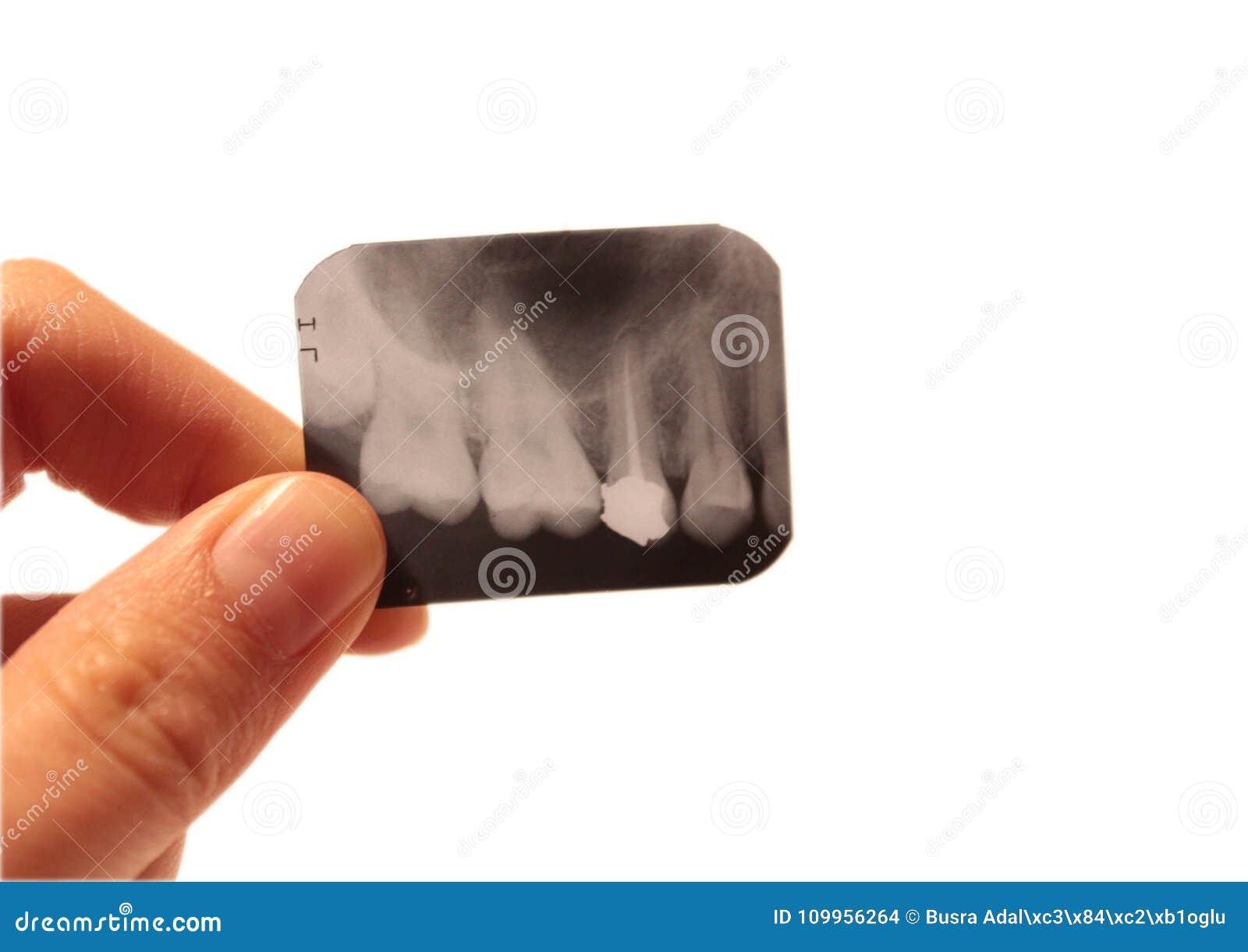 Tooth Dental Dentist Radiograpy Anatomy Stock Photo Image Of Exam