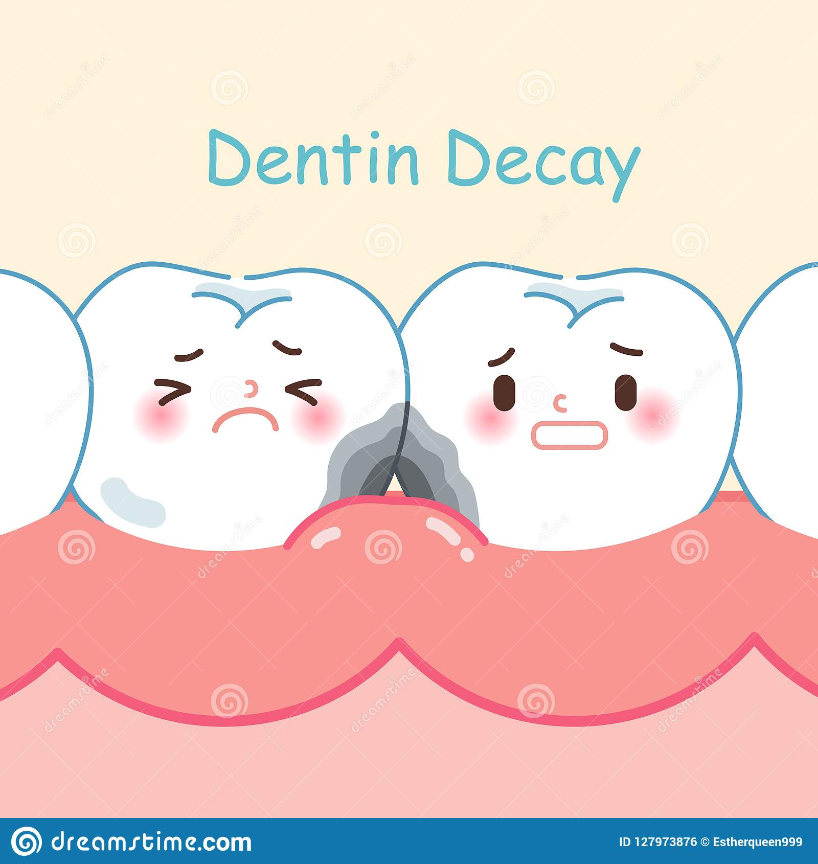 Tooth with dentin decay