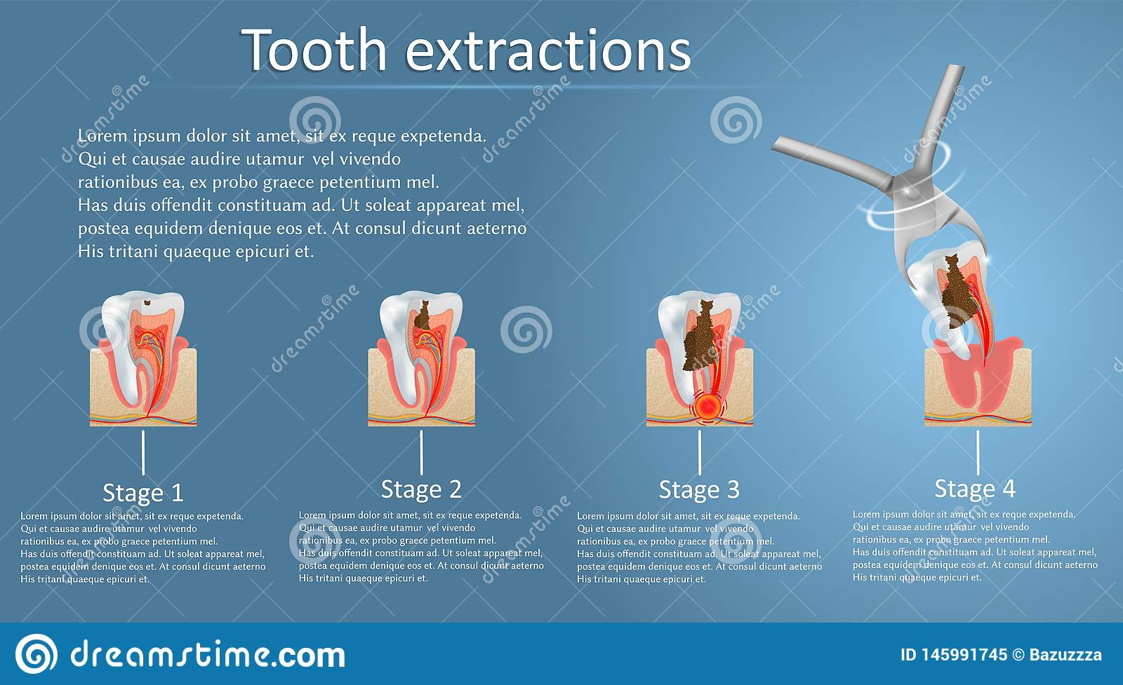 Tooth Extraction Concept Vector Poster Banner Template Stock Vector Illustration Of Dentistry Medicine 145991745