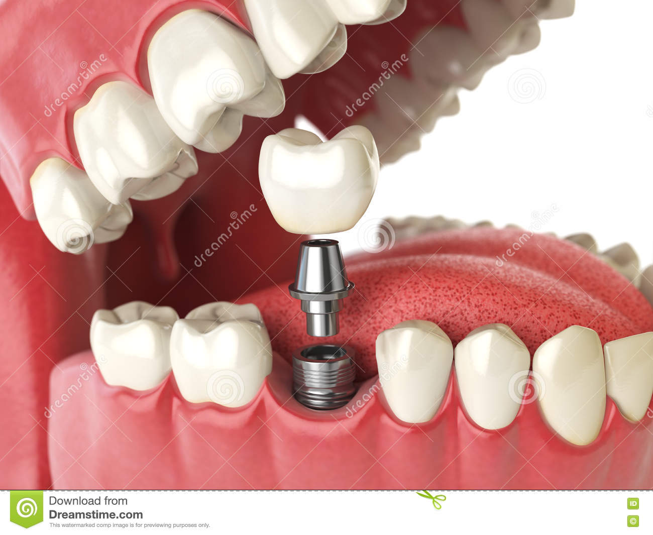 Tooth Human Implant Dental Concept Human Teeth Or Dentures Stock