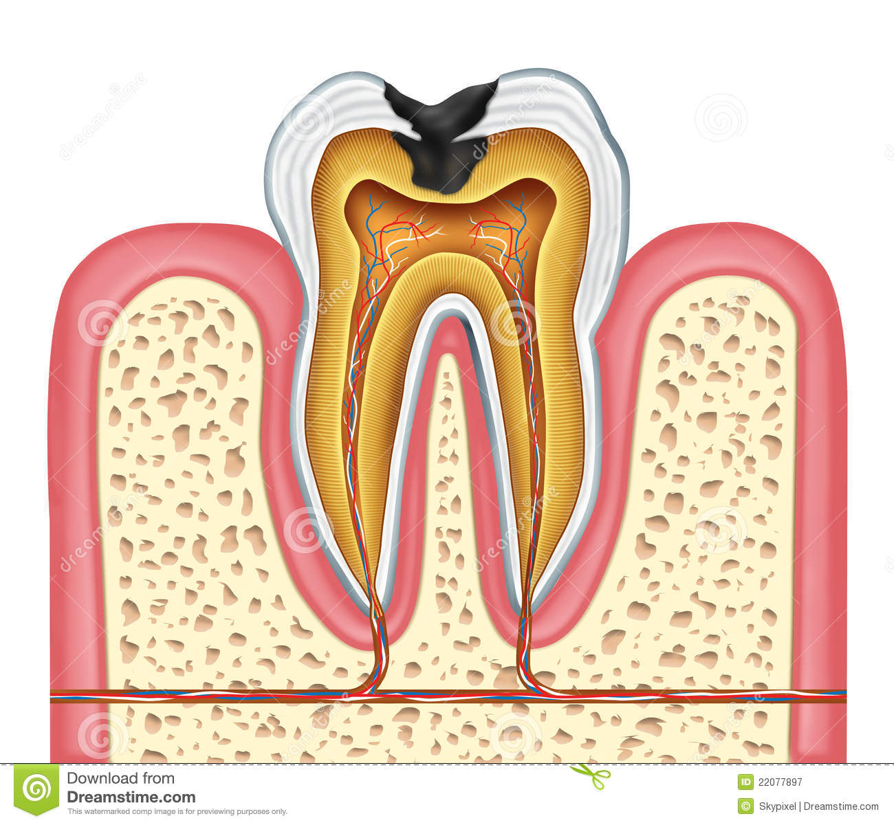 Tooth Inner Anatomy Of A Cavity Royalty Free Stock Photography Image 22077897