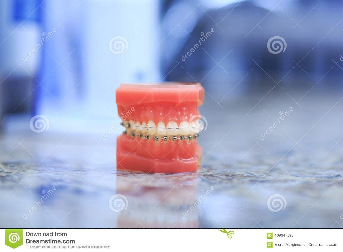 Tooth model with metal wired dental braces. Orthodontic dental model.