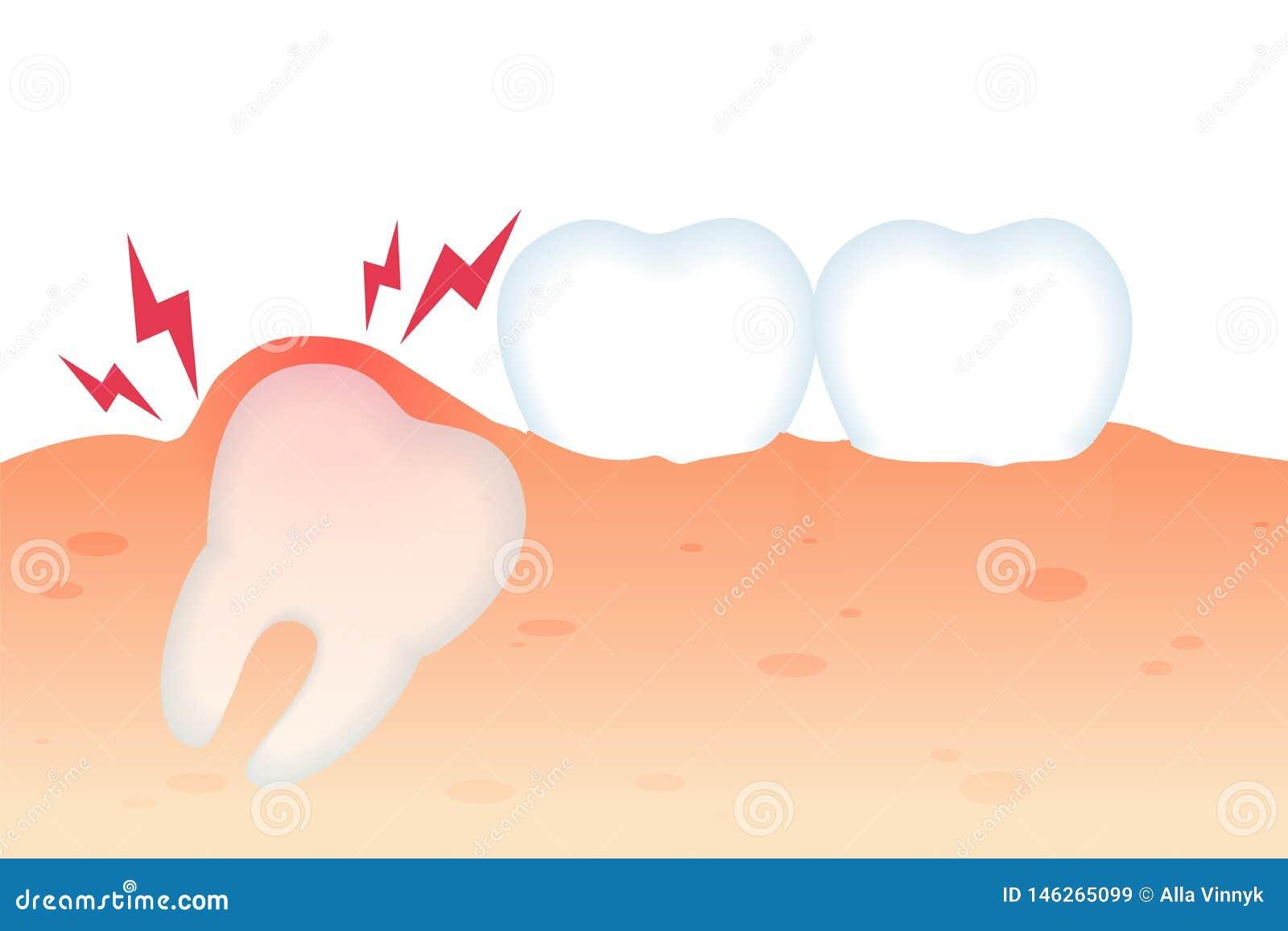 Toothache z zębu Wzrostowy Płaski Wektorowy Realistycznym