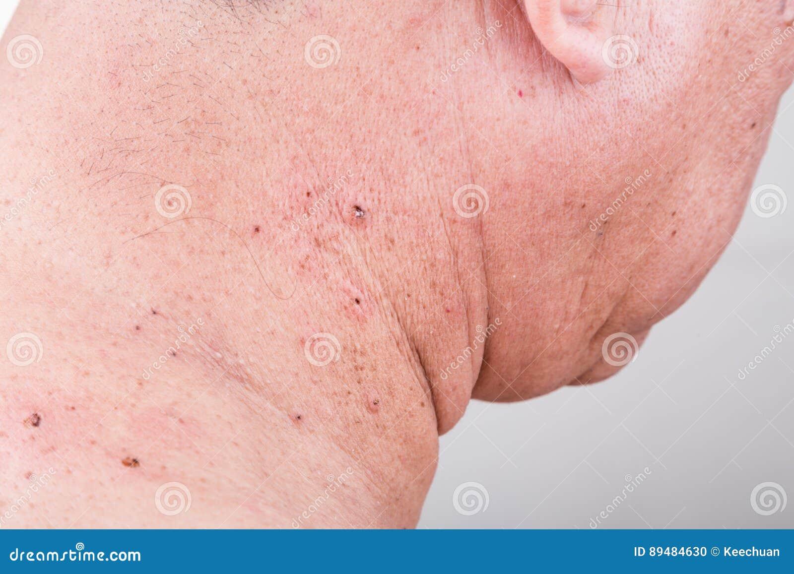 injerto de piel cicatrices