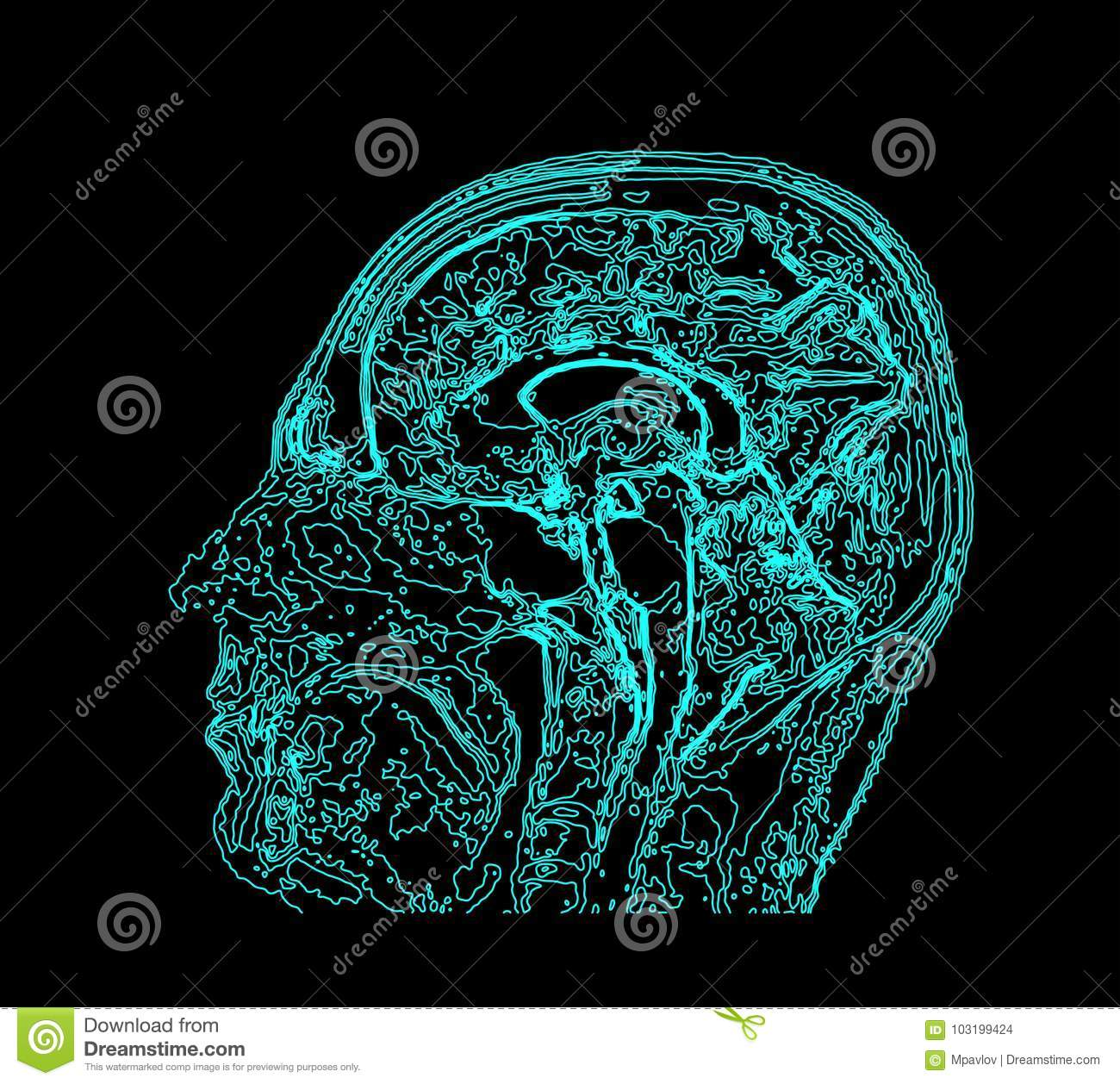 Topographic Map MRI Of The Human Brain. Stock Vector ...