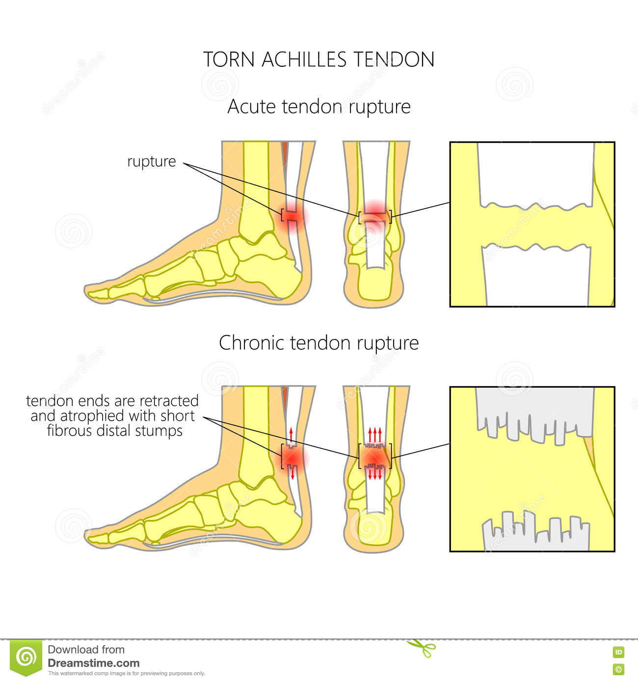 achilles cartoons  illustrations  u0026 vector stock images