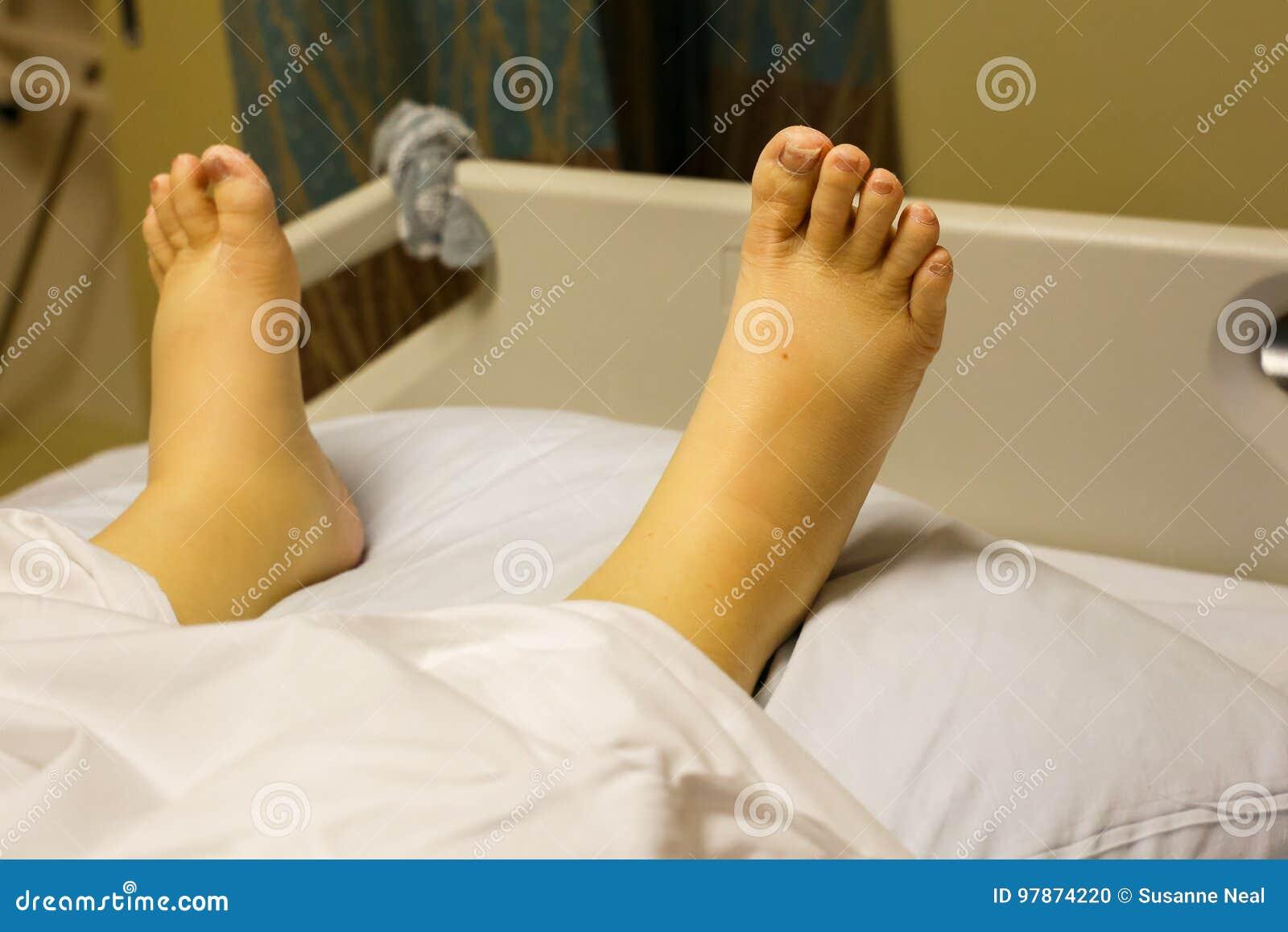 Tornozelos amarelos, inchados e pés devido ao alcoolismo