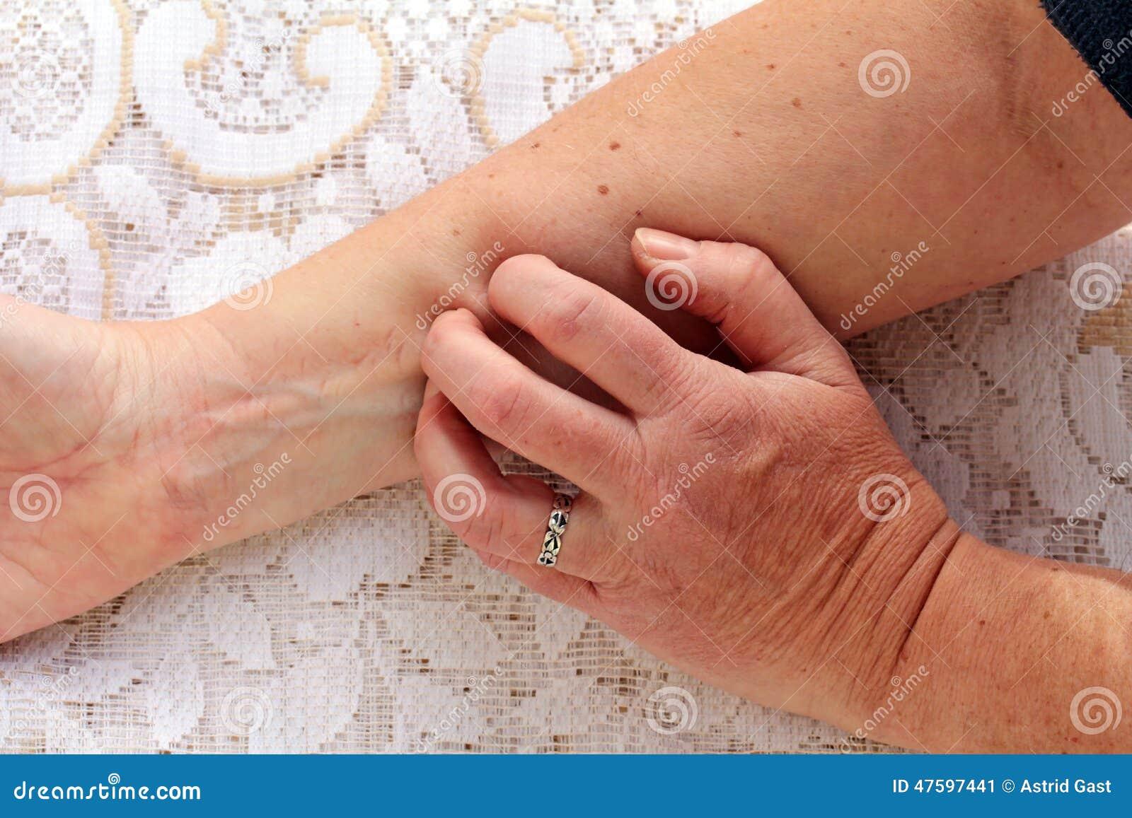 torr och kliande hud