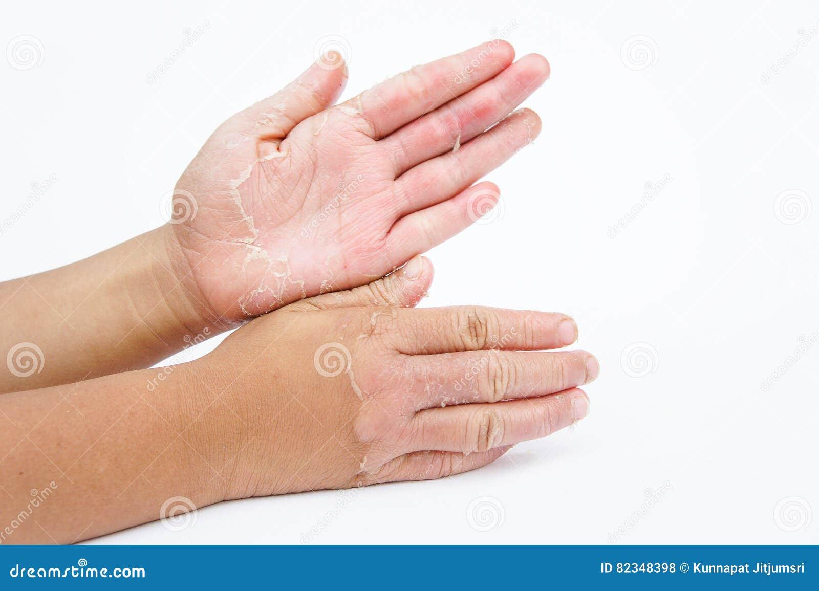torr om händerna