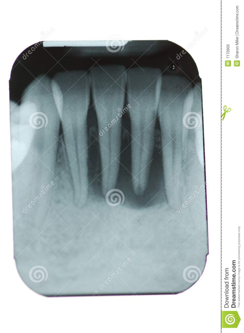 xray of front teeth - photo #42