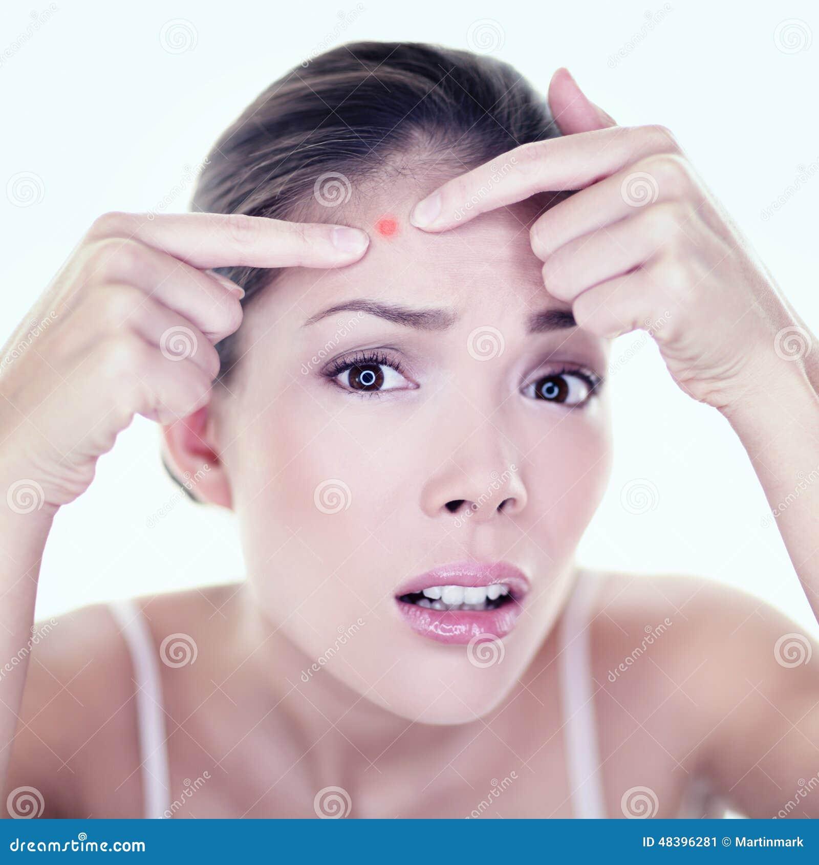Trądzik krosty skóry plamy punktu skóry opieki dziewczyna