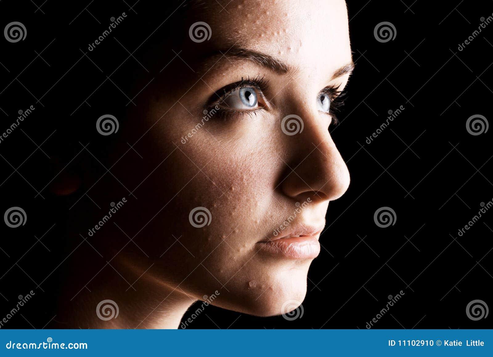 Trądzika kobiety cierpiący