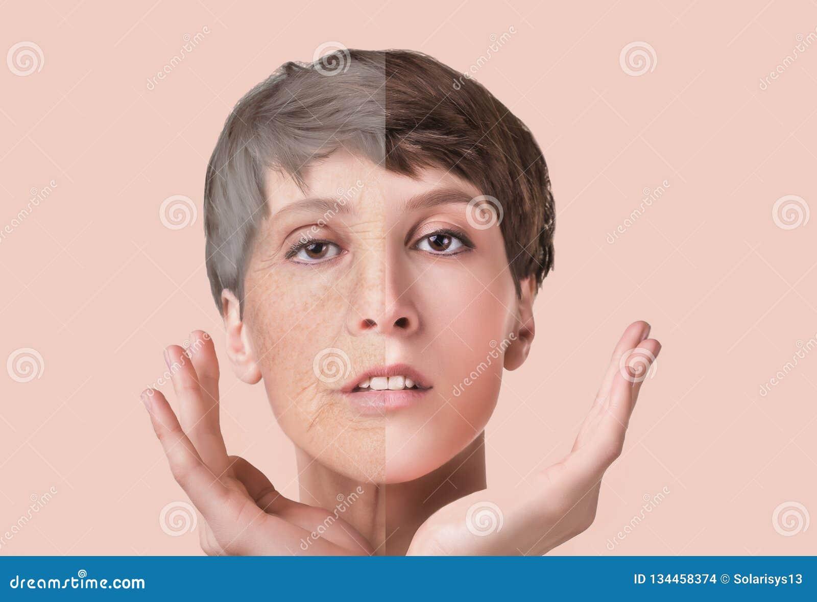 Traitement anti-vieillissement, de beauté, vieillissement et jeunesse, se soulevant, soins de la peau, concept de chirurgie plast