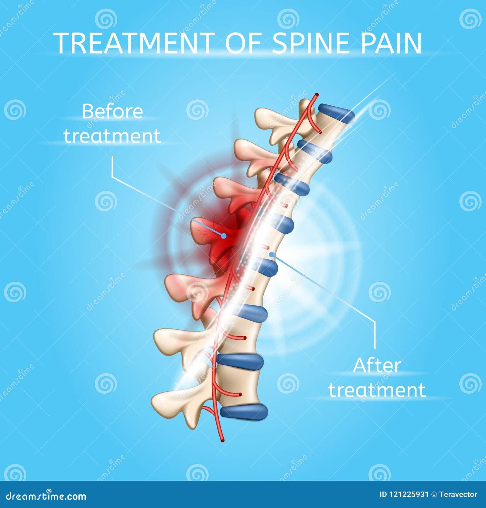 Traitement de diagramme réaliste de vecteur de douleur d épine