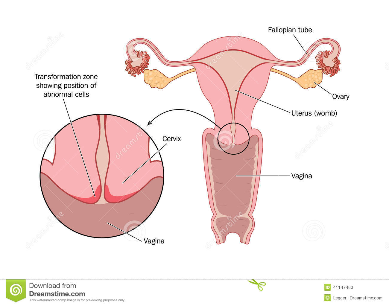 Transformation Zone Of Cervix Stock Vector Image 41147460