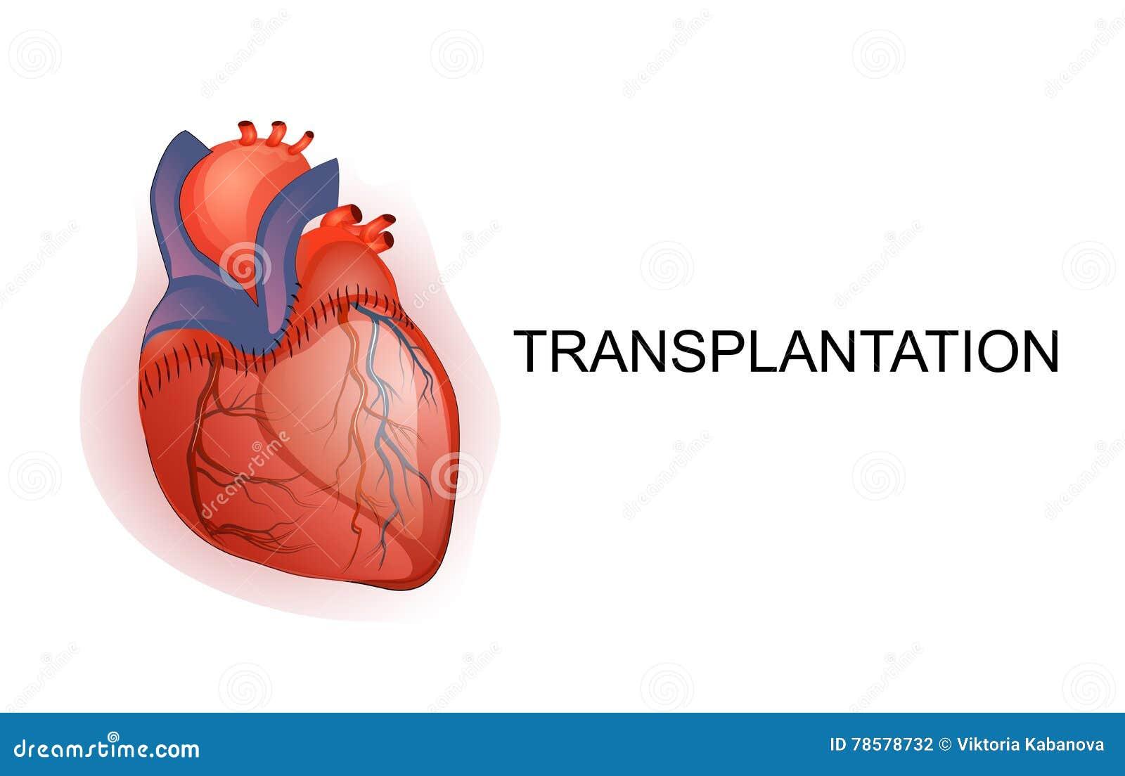 Trapianto dell organo Cuore Corpo parts