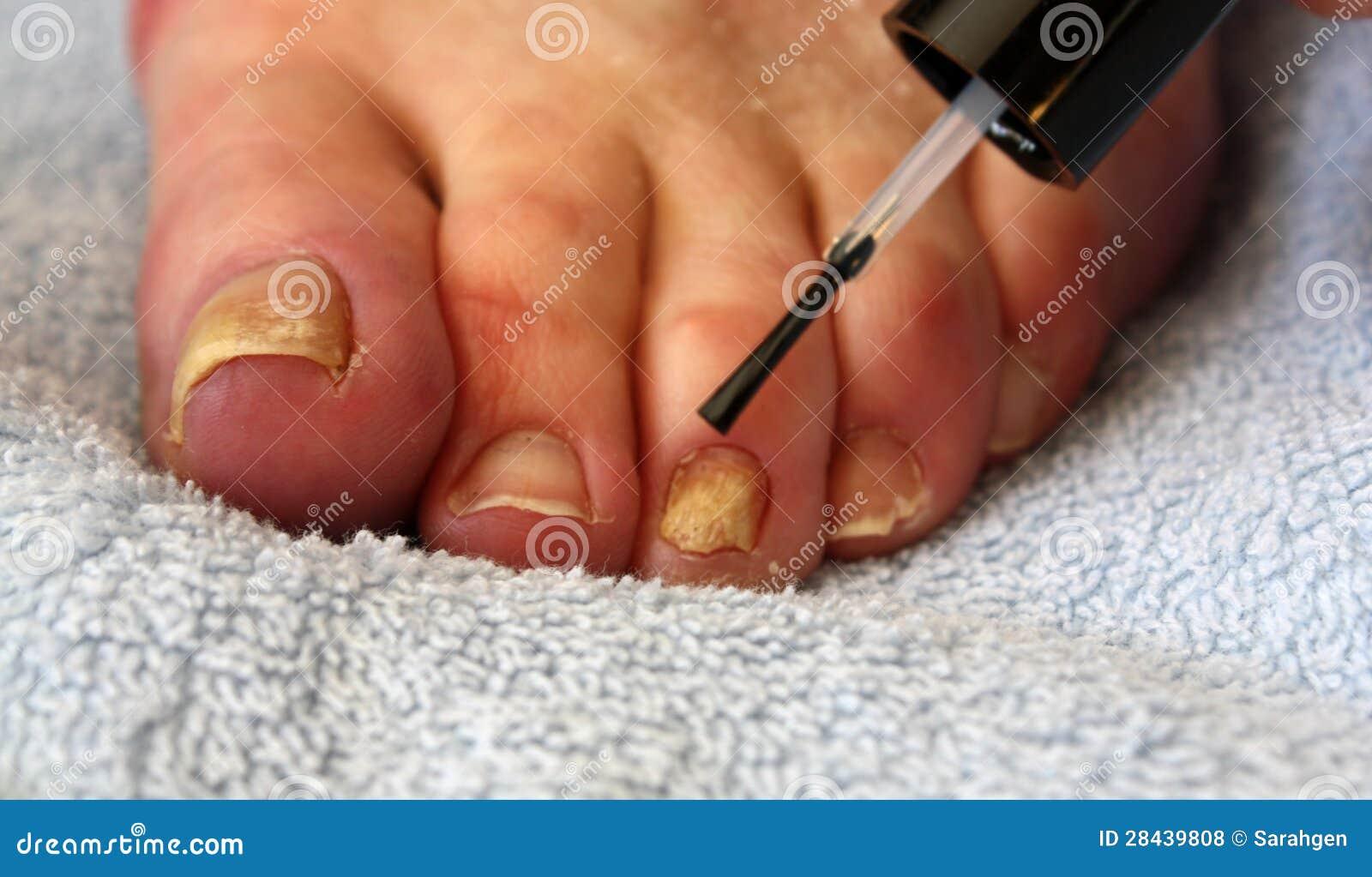 Vassoio per gambe con aceto da un fungo di piede
