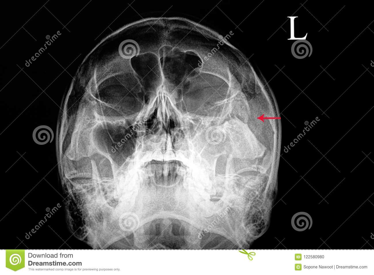 Traumatic Fracture Of Zygomatic Bone Stock Photo Image Of Patient
