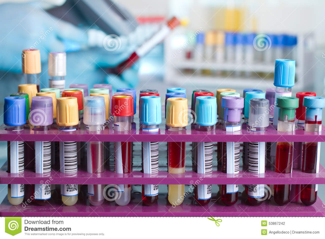 Tray With Tubes With Blood Samples Labeled Stock Photo