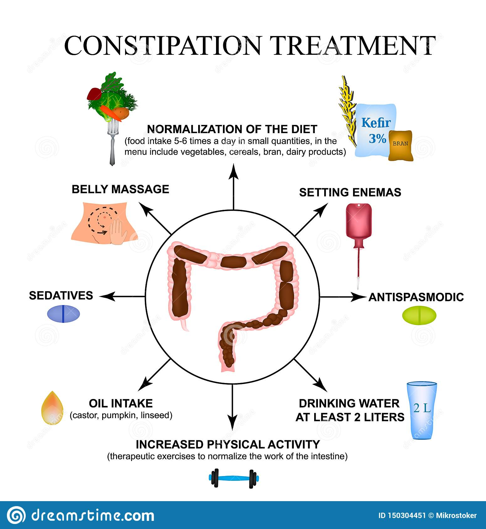 Treatment Of Constipation  Infographics  Vector Illustration