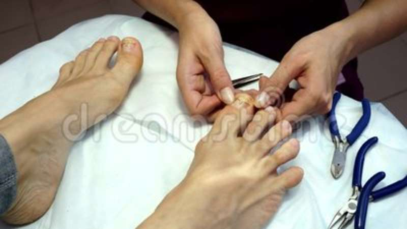 Treatment Of Ingrown Toenails. Ingrown Nail. The Doctor Is A ...