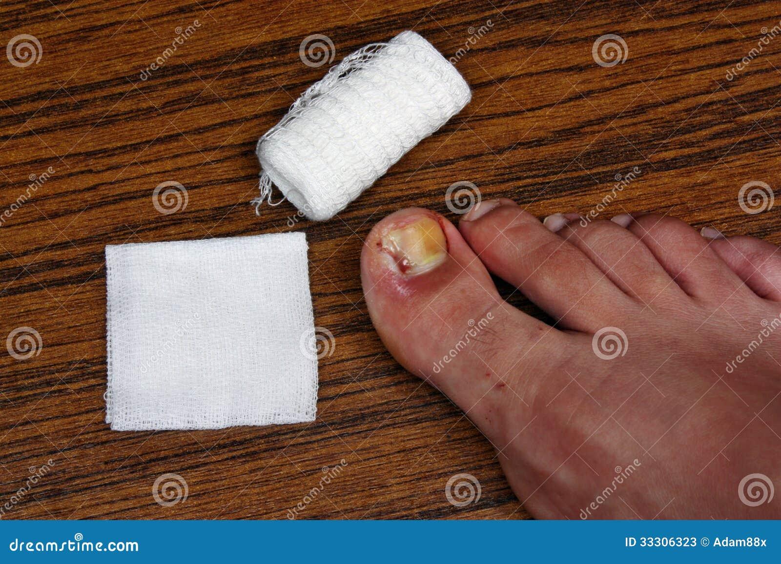 Badly Infected Ingrown Toenail removal of ingrown toenail