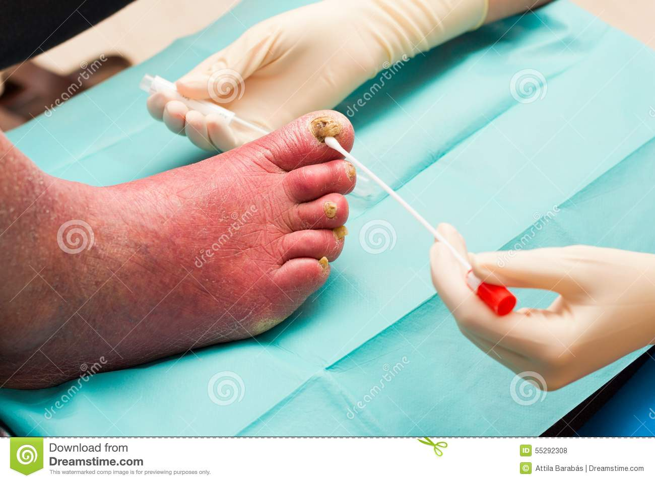 Treatment For Severe Fungal Nail Infection Stock Photo - Image of ...