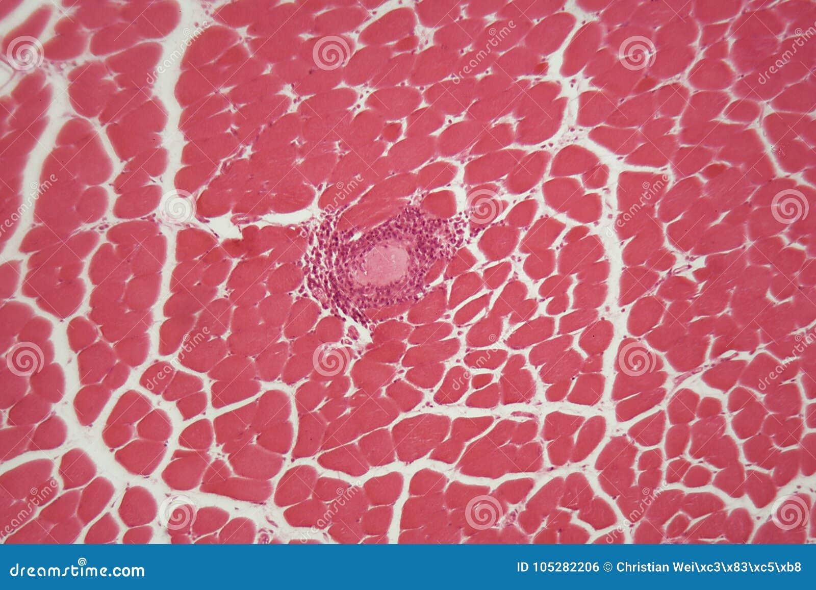 Trichine Spiralis Larven Im Muskelgewebe Unter Dem Mikroskop ...