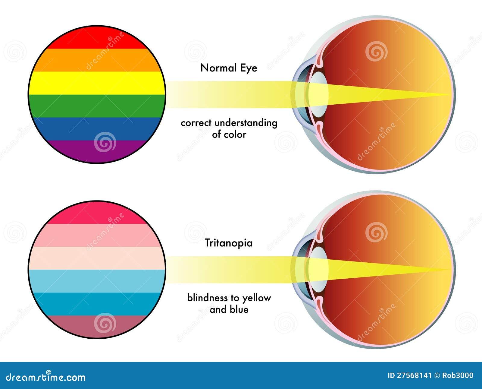 Medical illustration of the symptoms of tritanopia.
