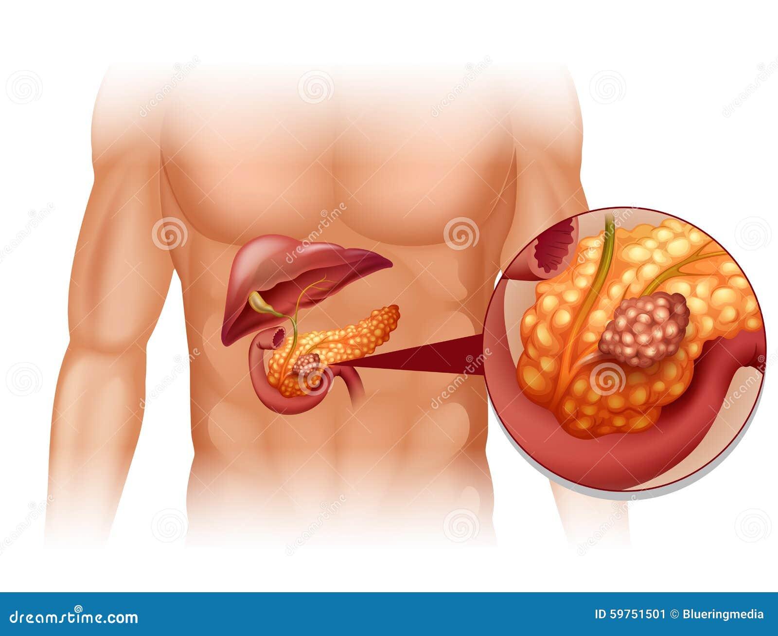 Trzustka nowotwór w ciele ludzkim
