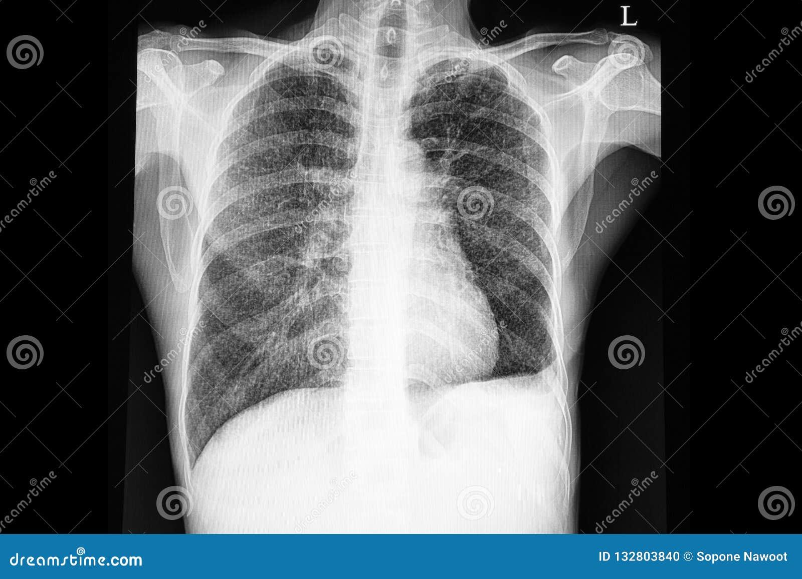 Tubercolosi Miliary