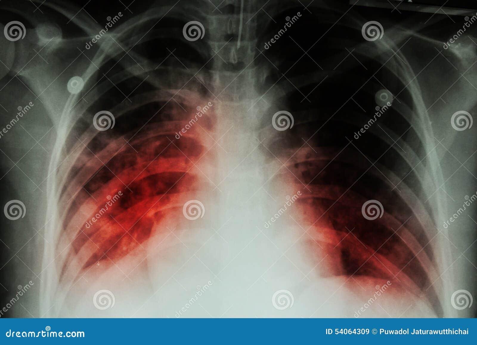 Tubercolosi polmonare (TB): Infiltrazione alveolare di manifestazione dell esame radiografico del torace agli entrambi polmone do