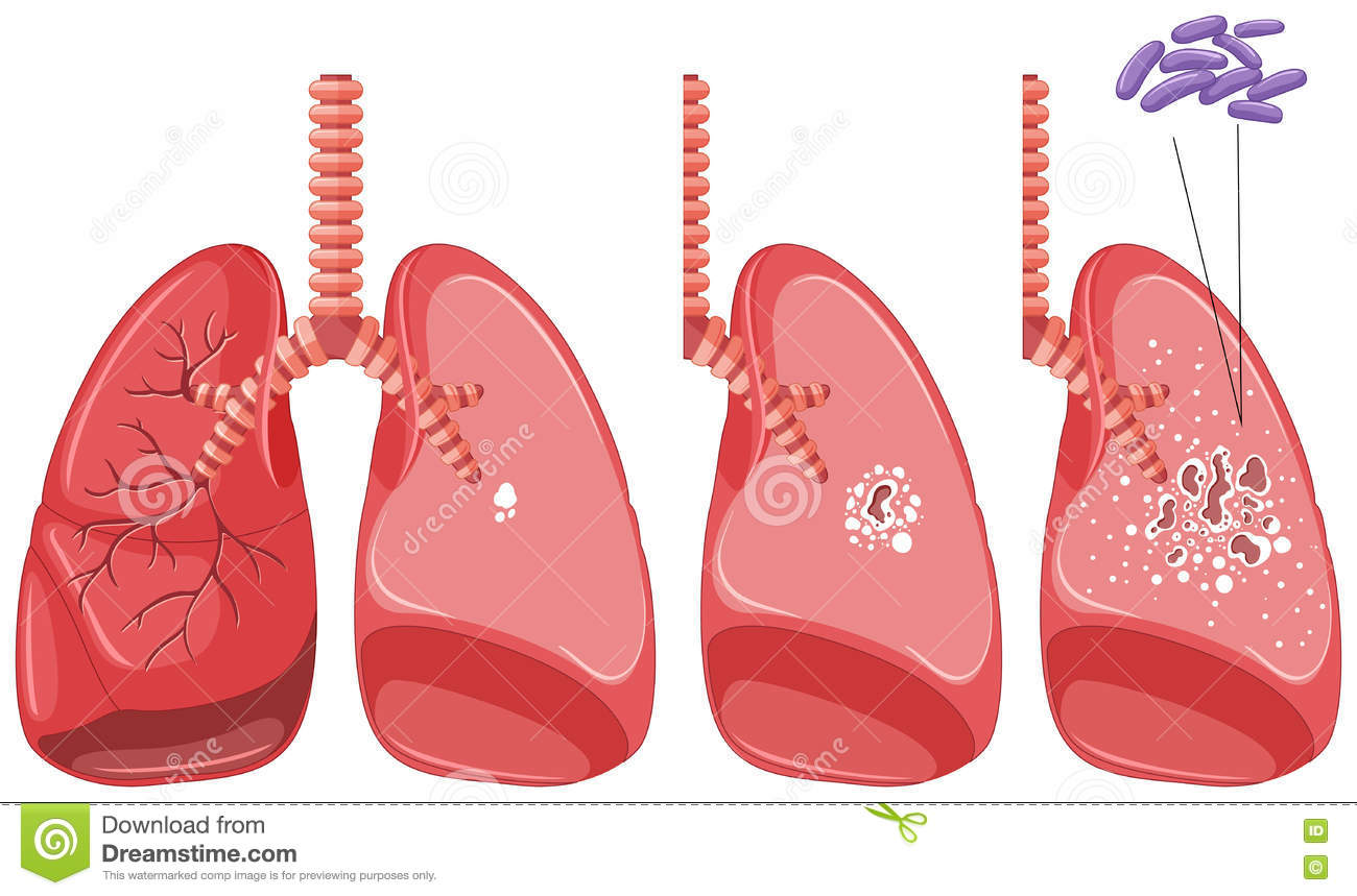 tuberculosis en pulmones humanos ilustraci u00f3n del vector lungs clip art with a face lungs clip art with a face
