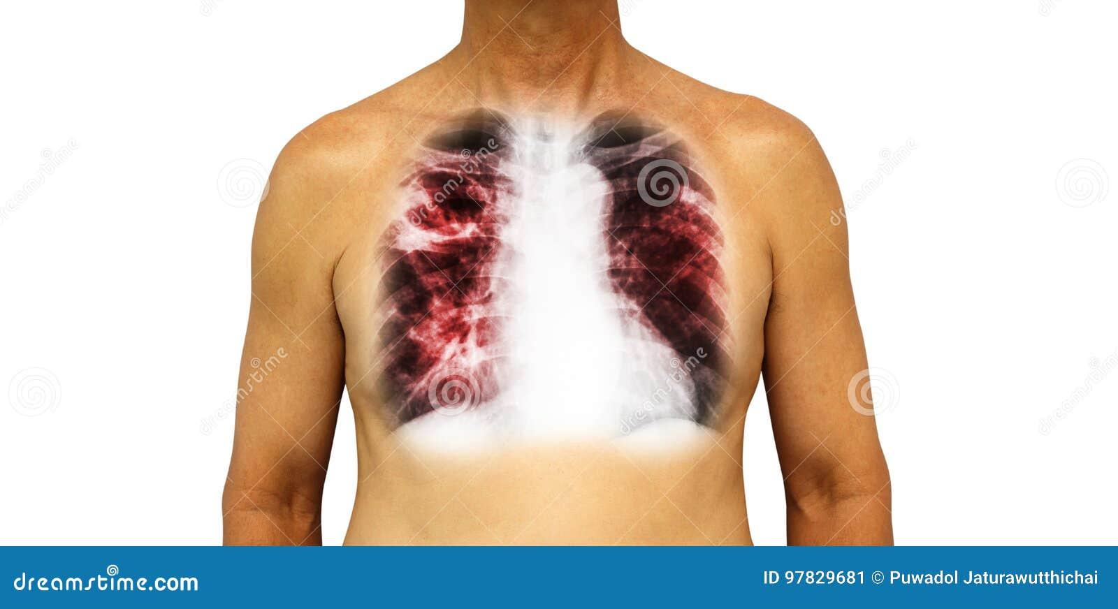 Tuberculosis Pulmonar El Pecho Humano Con La Cavidad De La ...