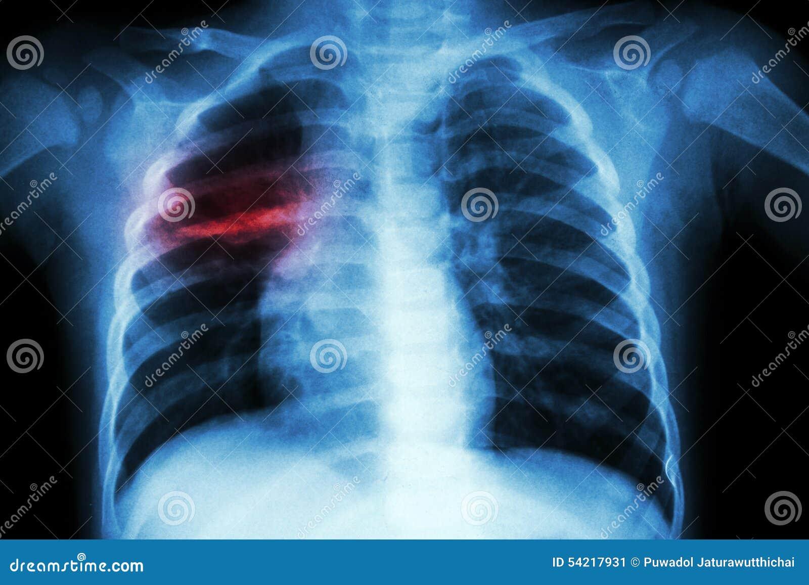 Tuberculosis pulmonar (radiografía del pecho del niño: muestre la infiltración desigual en el pulmón medio derecho)