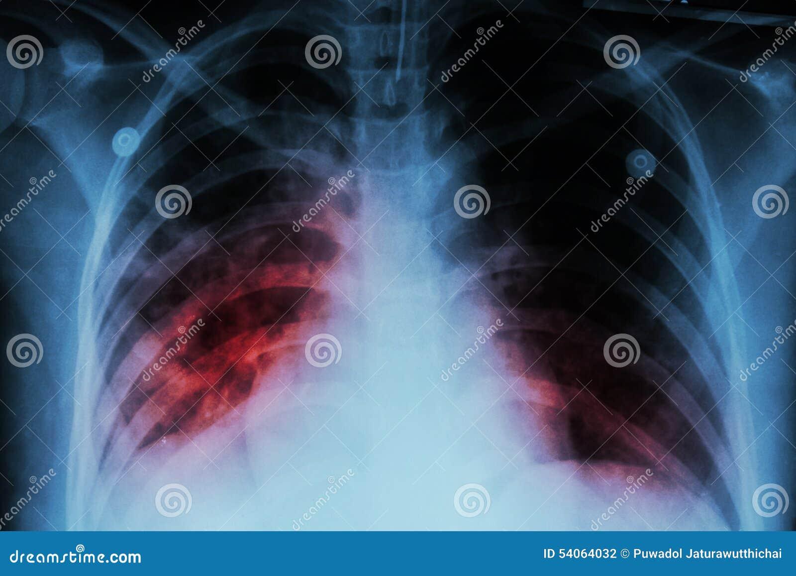 Tuberculosis pulmonar (TB): Infiltración alveolar de la demostración de la radiografía del pecho en ambos pulmón debido a la infe
