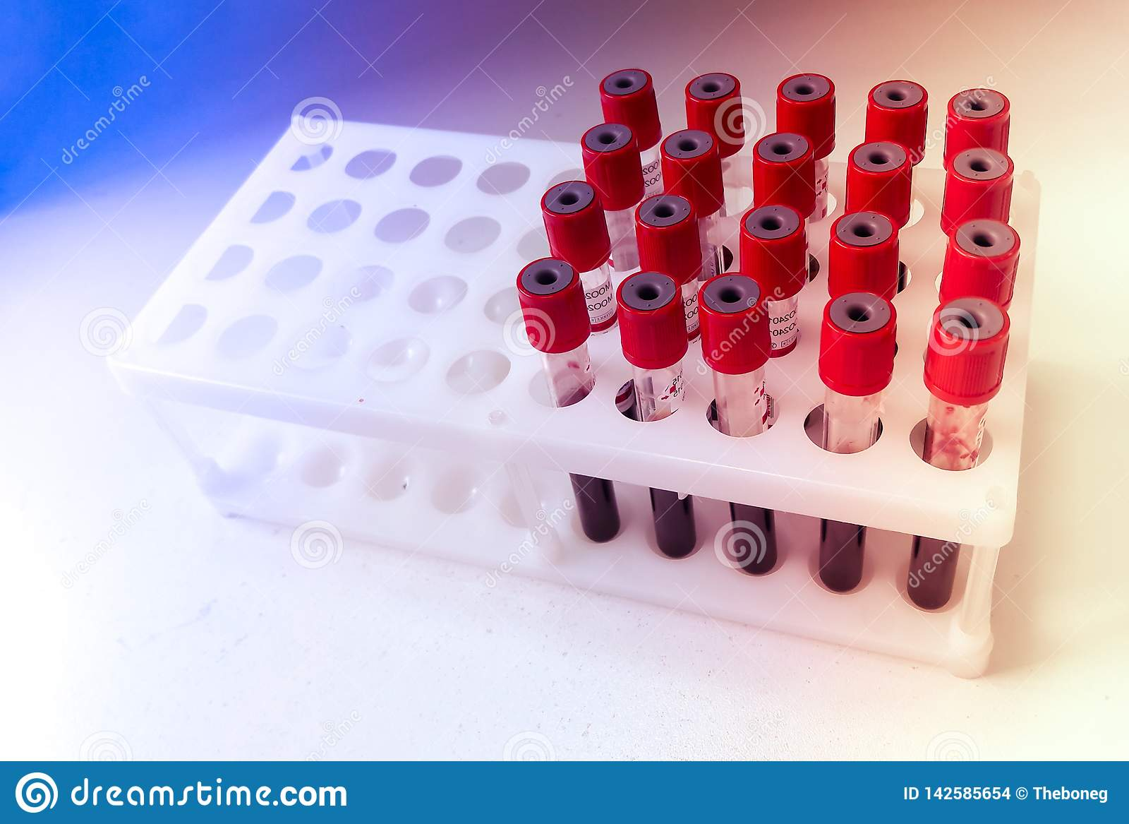 Tubes of blood sample for lab testing