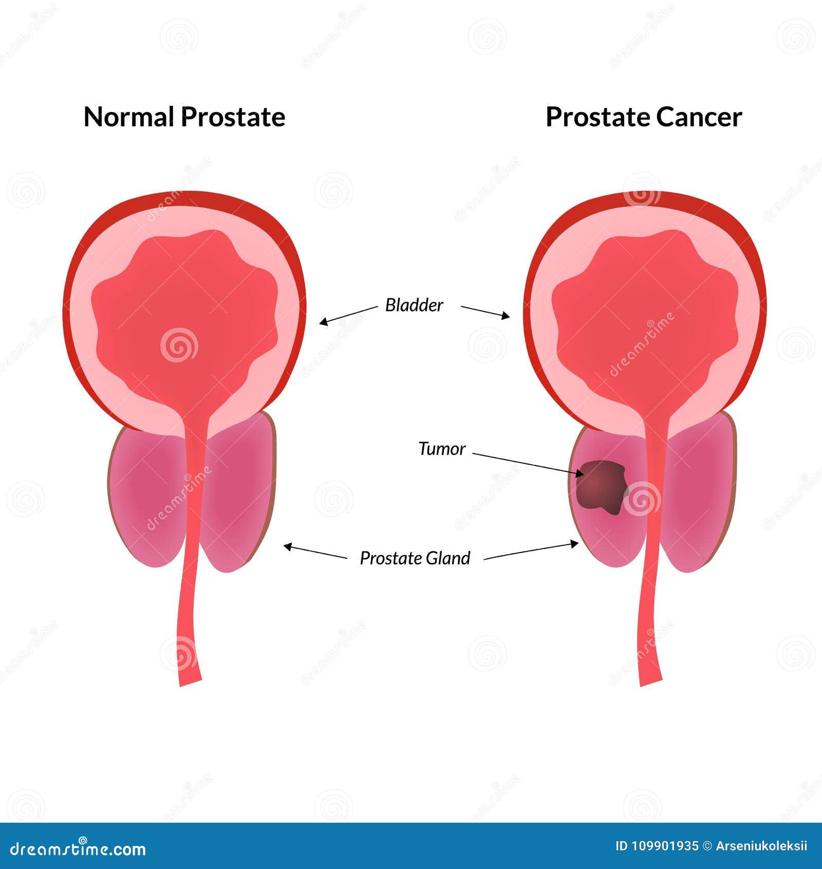 tumor prostata benigno