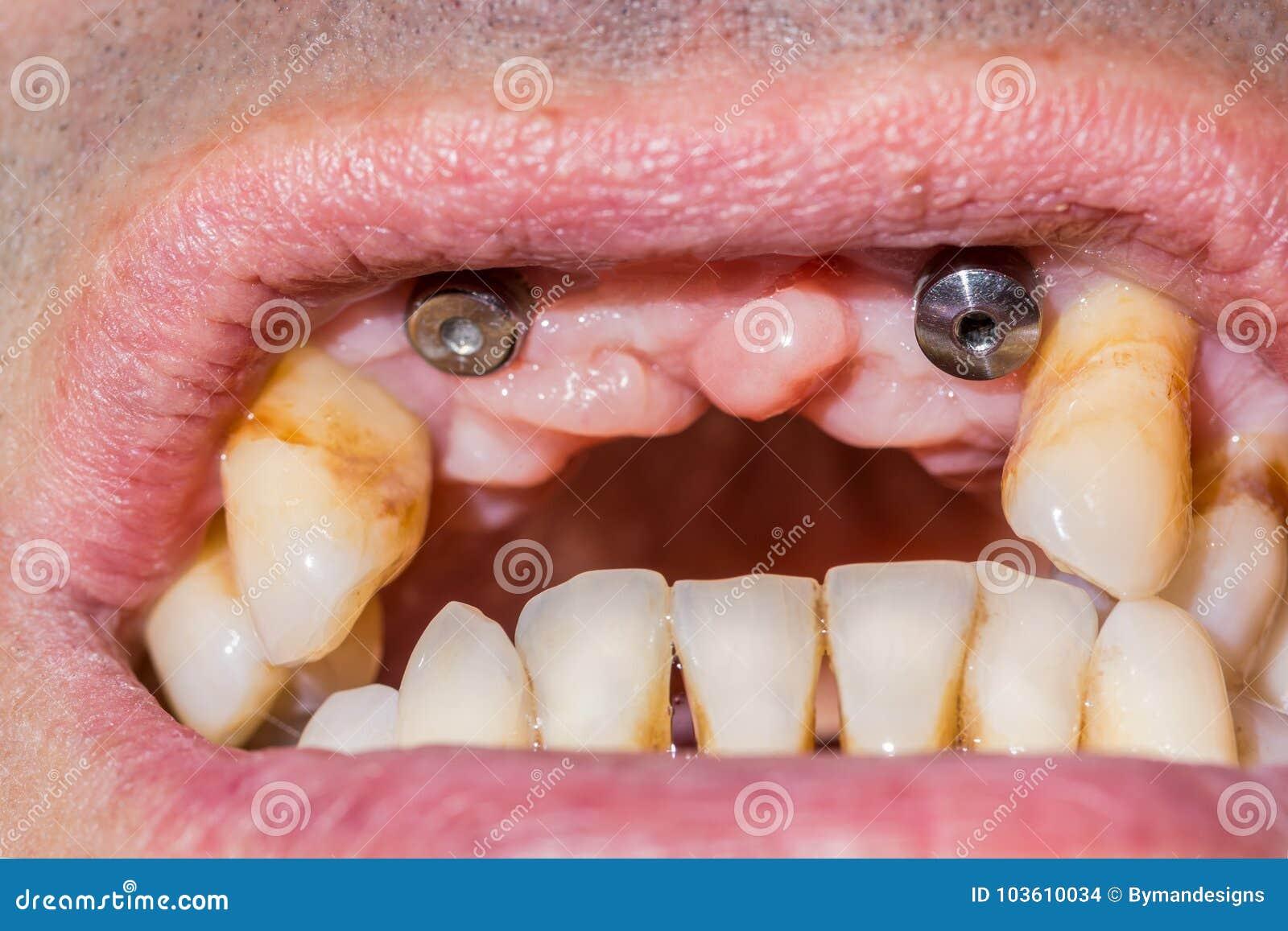 Två hund- tand- implantat i munnen av en patient med advanc