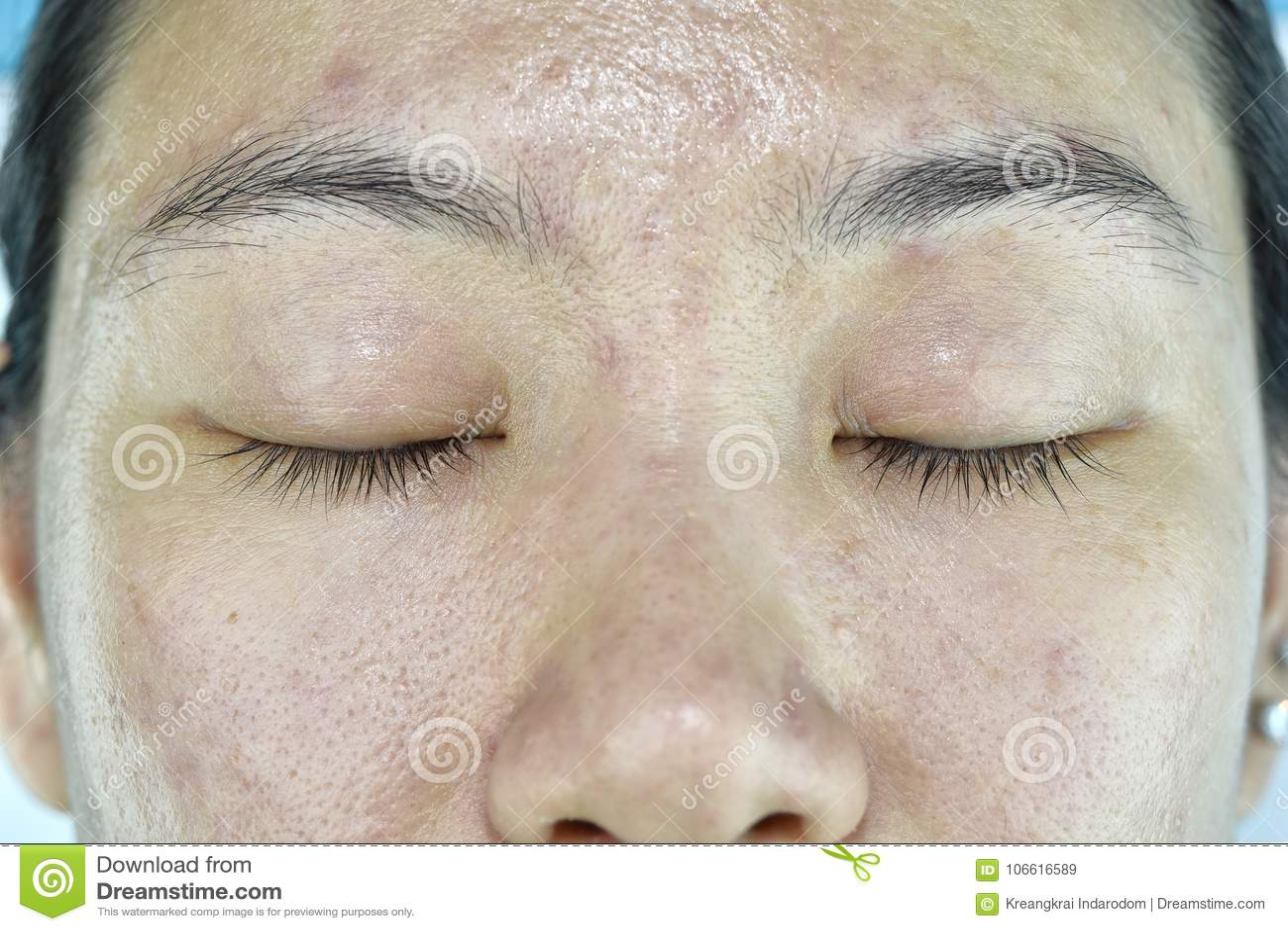 Twarzowy skóra problem, Starzeje się problem w dorosłym, zmarszczenie, trądzik blizna