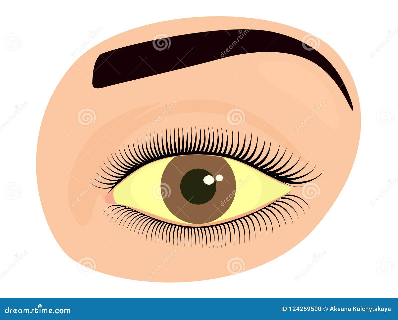 Twarzy front_Hepatitis i żółty oko